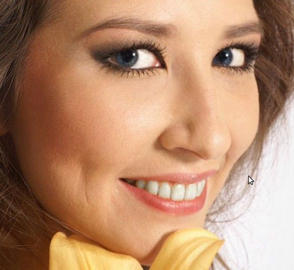 белоснежная улыбка - отбеливаем зубы